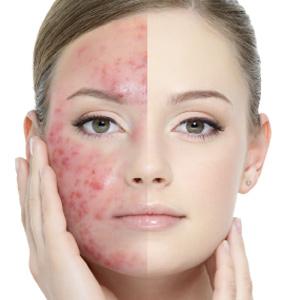 Medaesthetics Wien ästhetische Behandlungen Akne