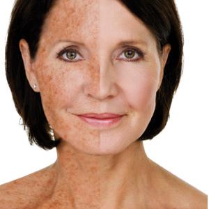Medaesthetics Wien ästhetische Behandlungen sonnegeschädigter Haut
