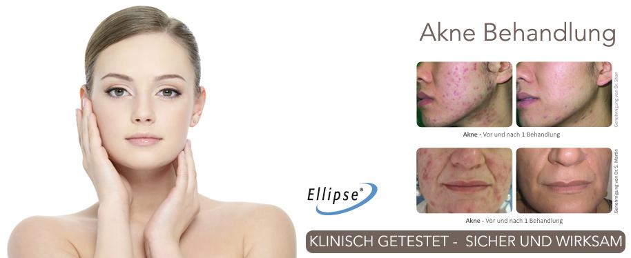 Akne Behandlungen