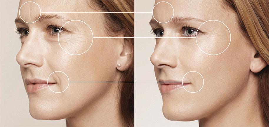 Eine Mesotherpie Behandlung bietet eine sanfte und schonende Methode Ihre natürliche Schönheit hervorzuheben. Medaesthetics Wien